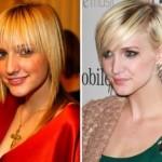 624640 Celebridades antes e depois da plástica fotos 4 150x150 Celebridades antes e depois da plástica: fotos