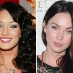 624640 Celebridades antes e depois da plástica fotos 9 150x150 Celebridades antes e depois da plástica: fotos