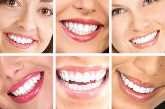 62607 Implantes Dentários Preços 01 Implantes Dentários Preços