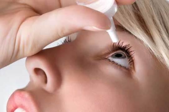 626856 O uso de colírios pode ser indicado no tratamento do glaucoma. Foto divulgação Glaucoma: o que é, sintomas, tratamento