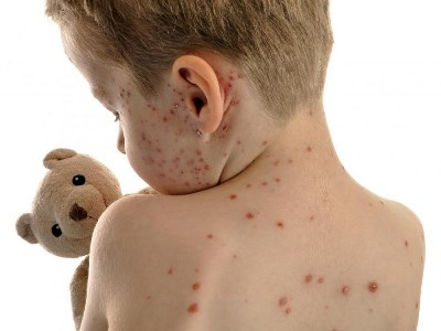 633410 As manchas vermelhas pelo corpo podem ser sinal de doença infecciosa como o sarampo. Foto divulgação Manchas vermelhas pelo corpo, o que pode ser