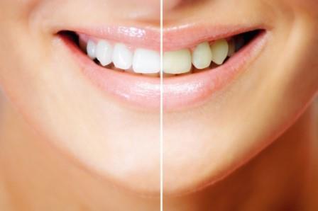 643193 Conheça as receitas caseiras para clarear os dentes. Foto divulgação Receitas caseiras para clarear os dentes