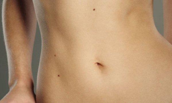 643429 As verrugas podem aparecer em várias partes do corpo. Foto divulgação Mitos e verdades sobre verrugas