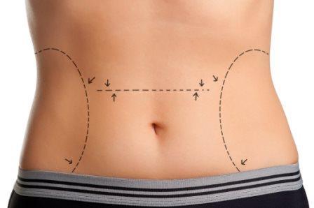 Mini-abdominoplastia: o que é, como funciona