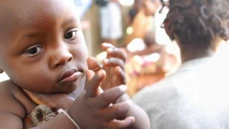 648647 A desnutrição é um probelma que afeta diversas crianças em todo o mundo. Foto divulgação  Desnutrição: consequências, sintomas