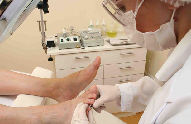 652446 Consulte um especialista para tratar as unhas inflamadas. Foto divulgação Unha inflamada: o que fazer, como tratar
