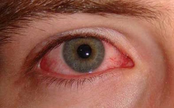 653668 A queimadura ocular pode comprometer a visão. Foto divulgação Queimadura ocular por solda: o que é