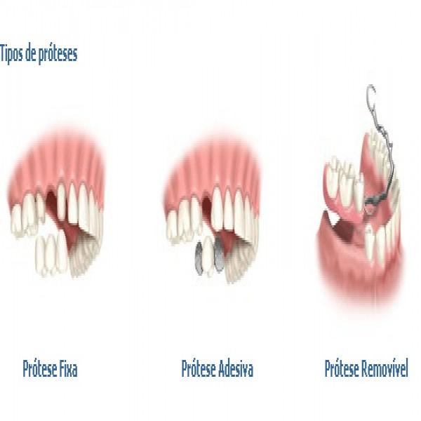 68193 tios de protese 600x600 Prótese Dentária   Preços, Fixas, Flexível, Silicone, Porcelana