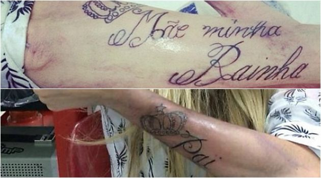 Laser para apagar tatuagem de Barbara Evans