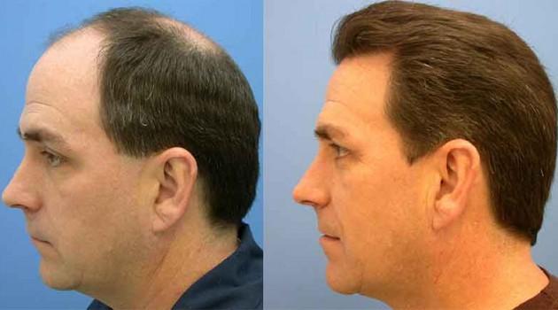 Respostas de foto de reconstrução de cabelo de queratina