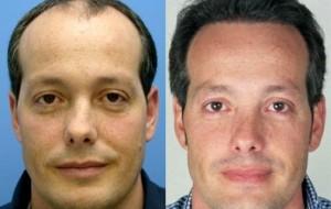 Transplante capilar resultados
