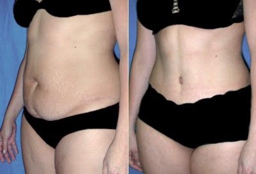 Abdominoplastia antes depois