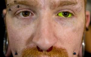 Perigos da tatuagem no olho