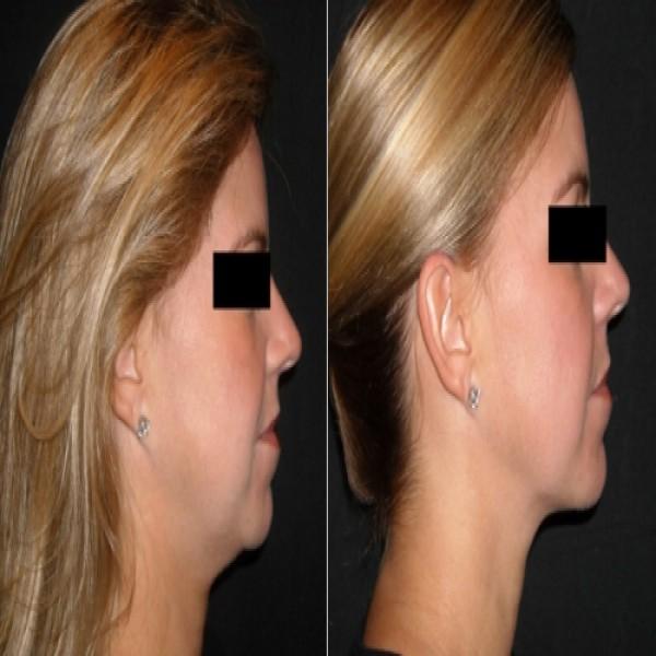 83781 cirurgia de papada 1 600x600 Lipoaspiração Na Papada   Preços, Quanto Custa A Cirurgia