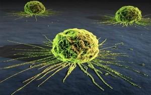 Câncer de estômago: o que é?