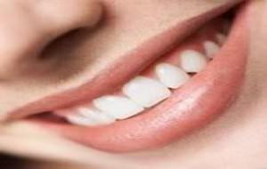 Clareamento Dental: Quais os Métodos?