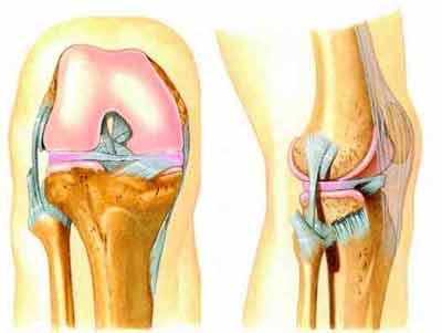 Osteartrite ArticulaesFragilizadas Osteartrite   Articulações Fragilizadas