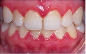 dentes Perda Óssea nos Dentes: Por Quê?