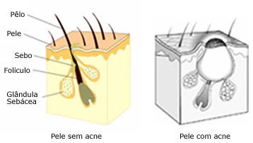 dicas acne espinhas Dicas Cuidados: Como Previnir, Tratar, Cuidar Acne ou Espinhas