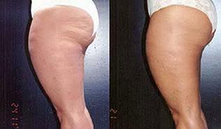 dicasparaacabarcelulite Dicas para Evitar a Celulite