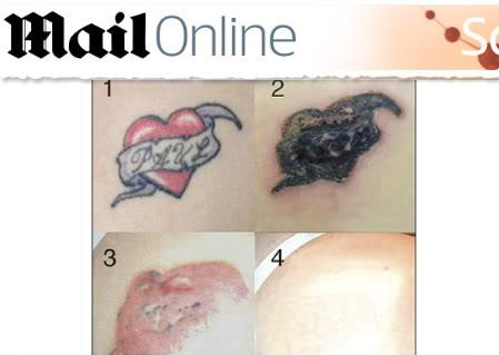 tirar tatuagem Tirar Tatuagem ? Rejuvil Produto para Remoção Total de Tatoo