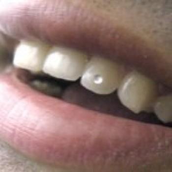 piercing dental fotos preços onde comprar 1 Piercing Dental   Fotos, Preços, Onde Comprar