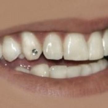 piercing dental fotos preços onde comprar 2 Piercing Dental   Fotos, Preços, Onde Comprar
