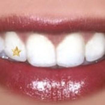 piercing dental fotos preços onde comprar 3 Piercing Dental   Fotos, Preços, Onde Comprar