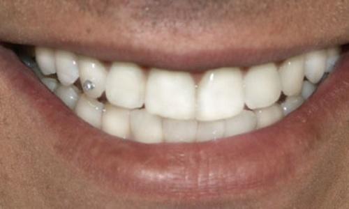 piercing dental fotos preços onde comprar 4 Piercing Dental   Fotos, Preços, Onde Comprar