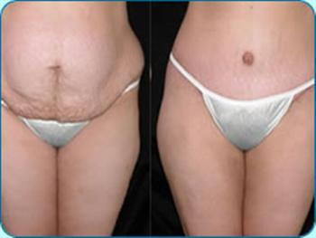 Abdominoplastia Antes e Depois1 Abdominoplastia Antes e Depois