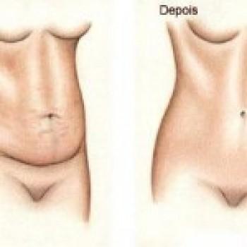 Abdominoplastia Antes e Depois2 Abdominoplastia Antes e Depois