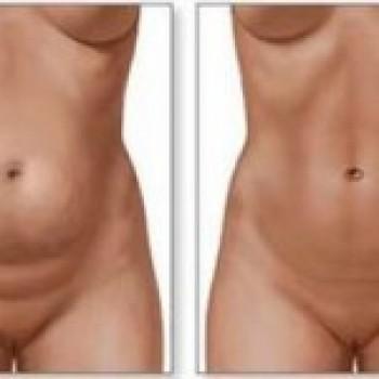 Abdominoplastia Antes e Depois3 Abdominoplastia Antes e Depois