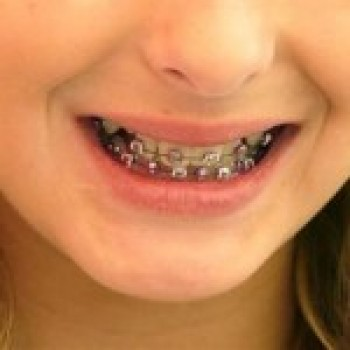 Aparelho Ortodontico Fixo Cores Precos Transparente Aparelho Ortodôntico Fixo   Cores, Preços, Transparente
