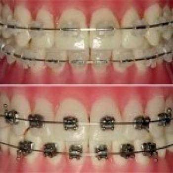 Aparelho Ortodontico Fixo Cores Precos Transparente11 Aparelho Ortodôntico Fixo   Cores, Preços, Transparente