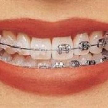 Aparelho Ortodontico Fixo Cores Precos Transparente3 Aparelho Ortodôntico Fixo   Cores, Preços, Transparente
