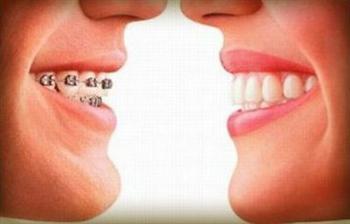 Aparelho Ortodontico Fixo Cores Precos Transparente4 Aparelho Ortodôntico Fixo   Cores, Preços, Transparente