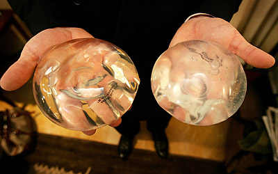 Cirurgia Plástica Cuidados Com os Exageros nas Próteses de Silicone Cirurgia Plástica Cuidados Com os Exageros nas Próteses de Silicone