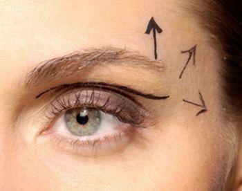 Cirurgia plastica de palpebras Preços Passo a Passo Cirurgia plástica de pálpebras   Preços, Passo a Passo