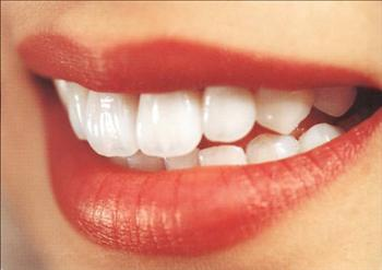 Implantes Dentario Precos Quanto Custa Implante Dentário Preços, Quanto Custa