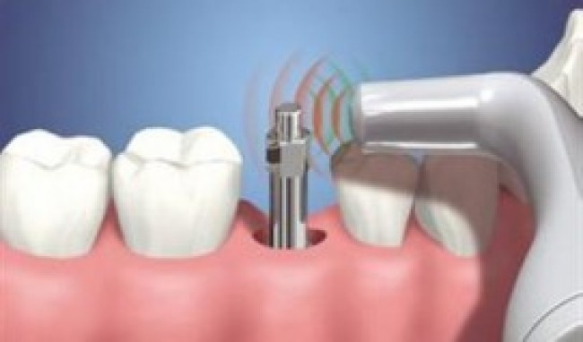Implantes Dentario Precos Quanto Custa1 Implante Dentário Preços, Quanto Custa