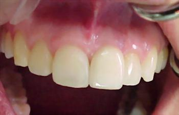 Implantes Dentario Precos Quanto Custa3 Implante Dentário Preços, Quanto Custa