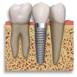 pontes móveis dentes próteses dentárias removíveis Pontes Móveis Dentes, Próteses Dentárias Removíveis