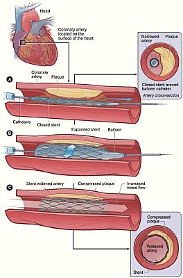 Cirurgia de Angioplastia Preços Procedimento Cirurgia de Angioplastia   Preços, Procedimento