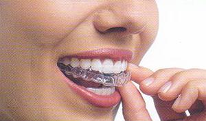 Invisalign Preço Aparelho Dentário Invisível Invisalign Preço, Aparelho Dentário Invisível