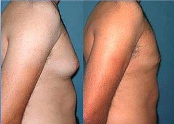 Redução de Mama Masculina Preços Cirurgia Redução de Mama Masculina   Preços, Cirurgia