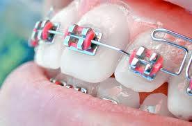 Tipos de Aparelhos Ortodônticos Modelos Aparelhos Dentários Tipos de Aparelhos Ortodônticos, Modelos de Aparelhos Dentários