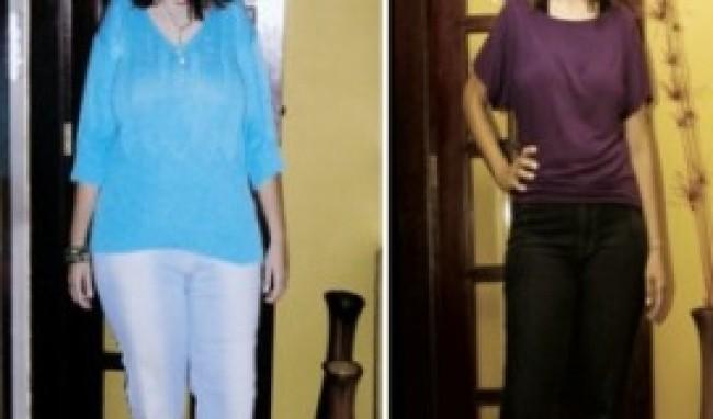 cirurgia bariatrica antes e depois cirurgia para redução do estômago  Cirurgia Bariátrica Antes e Depois, Cirurgia Para Redução do Estômago