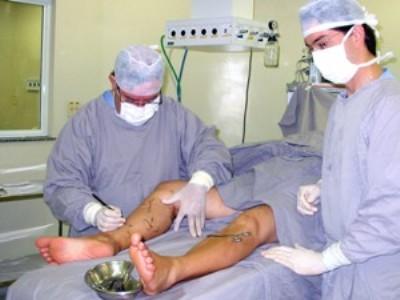 cirurgia de varizes gratuita Cirurgia De Varizes Gratuita