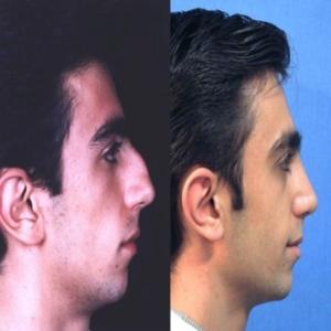 cirurgia plastica nariz preço Cirurgia Plástica Nariz Preço
