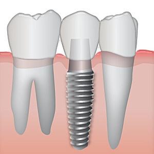 tratamento dentário gratuito pernambuco Tratamento Dentário Gratuito Pernambuco